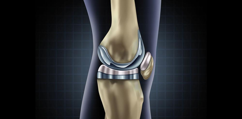 Эндопротезирование тазобедренного и коленного суставов